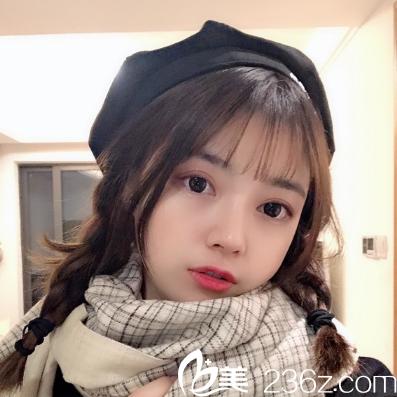五个月前在深圳恩吉娜做了双眼皮效果不错,这次又忍不住找张锋做了隆鼻