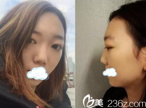 广安悦美医疗美容诊所朱德军术前照片1