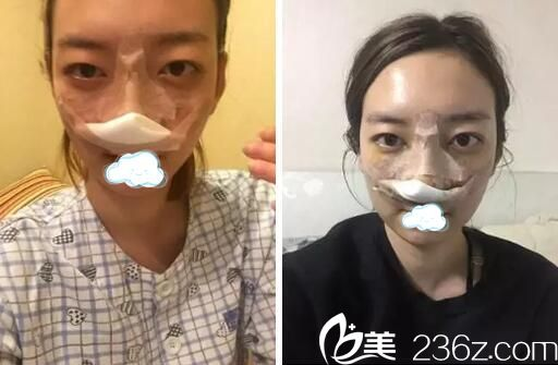 广安华美悦美整形鼻综合术后即刻