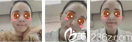 上海百达丽医疗美容门诊部滕彦术前照片1