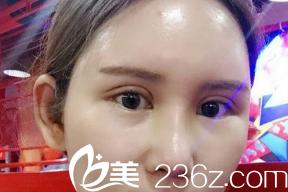 双眼皮恢复10天的样子