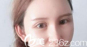 双眼皮恢复20天的样子
