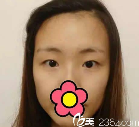 赤峰夏天整形美容医院术前照片1