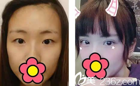 赤峰夏天整形美容医院术后照片1