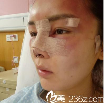 深圳美莱隆鼻修复术后照片