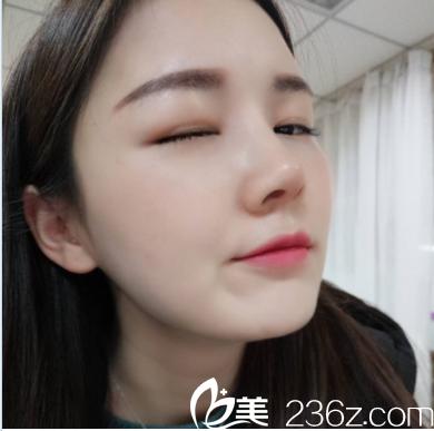 深圳美莱梁晓健隆鼻修复案例