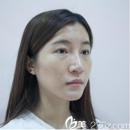 广州美莱医疗美容整形医院张毓术前照片1