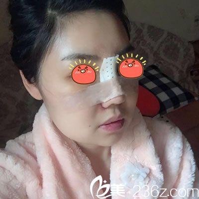 在宁波雅韩刚做完隆鼻手术照片