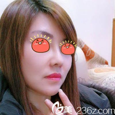 25岁因为塌鼻问题一直不敢相亲,在宁波雅韩整形美容医院做了肋软骨综合隆鼻恢复自信