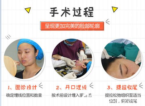 赣州星铂丽线雕手术过程