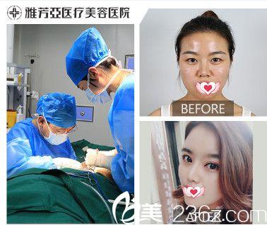 雅芳亚整形医院做肋软骨隆鼻案例