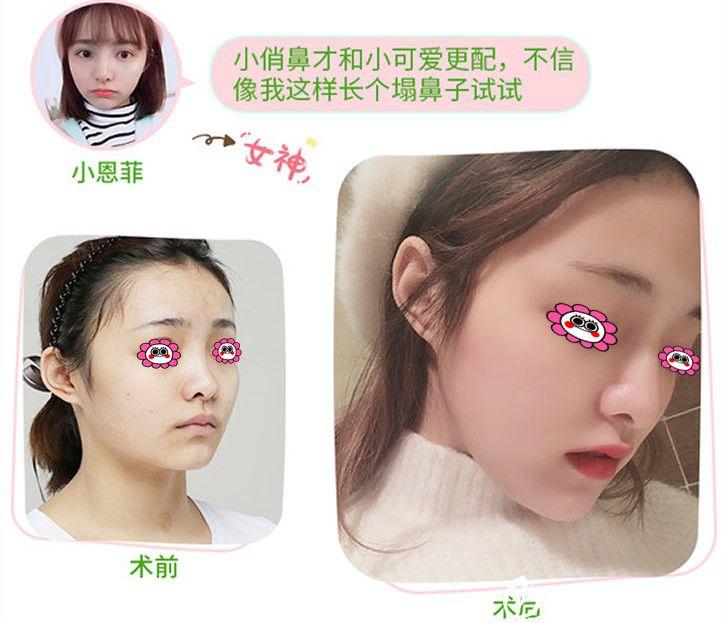 重庆华美张国强隆鼻效果图