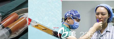 青岛诺德面诊自体脂肪填充手术的现场