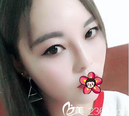 宁波雅韩医疗美容门诊部刘成林术后照片1