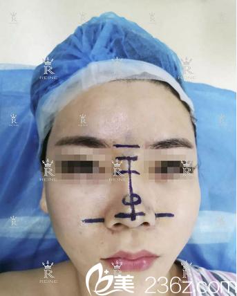 惠州瑞芙臣隆鼻案例术前照片