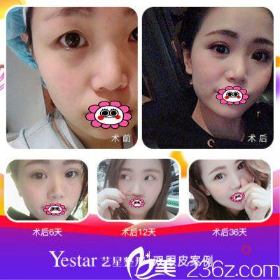 上海yestar许炎龙开双眼皮案例图
