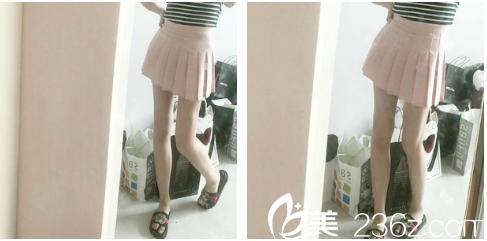 大腿上的肉怎么都减不掉,后来我去广州韩妃找于洪瑞做了大腿吸脂才瘦下来