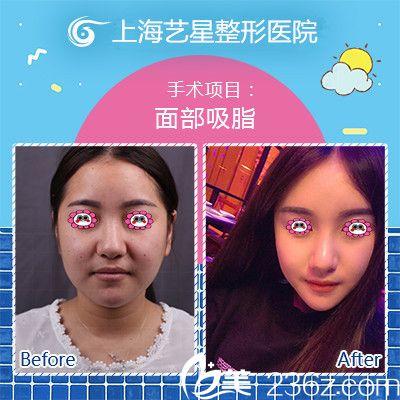 我在上海艺星做面部吸脂后的样子