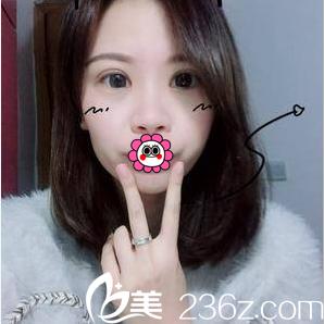面诊了王维医生后我决定在北京百达丽做双眼皮修复