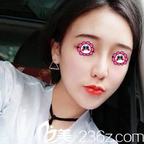 我找薛轶群做假体隆鼻+耳软骨垫鼻尖有看北京艺星宫廷隆鼻案例