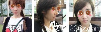 闺蜜之前去上海美立方做了鼻修复效果不错,所以我来做了肋软骨隆鼻