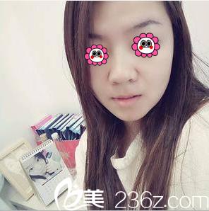 我在北京百达丽做了硅胶假体隆鼻,当时拆完线后整个人感觉轻松了不少