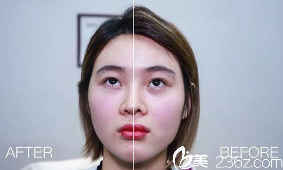 注射胶原蛋白祛黑眼圈案例效果