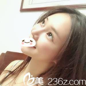 郑州哪个医生做鼻综合好?华山整形医院找胡斌做的达拉斯肋鼻综让我新年焕新颜