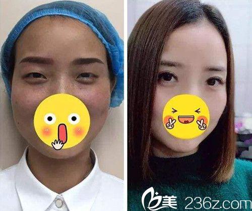 邯郸京美2019新年整形优惠价格表已上线 双眼皮仅680元
