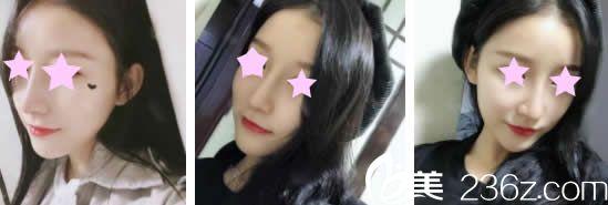 听说南宁美丽星整形很靠谱就找李武斌做了膨体+软骨鼻综合,晒晒术后1-7天的照片