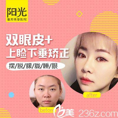 深圳阳光李鹏双眼皮案例