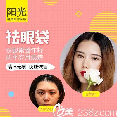 深圳阳光朱黎明祛眼袋案例