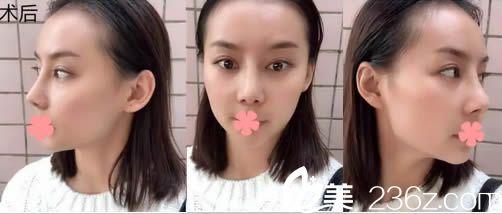详述我在福州名韩让察鹏飞做完鼻综合术后1-7天的照片及心得,亲们来评估下效果怎么样哦