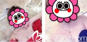 上海美联臣隆胸效果怎么样?三个月前我找刘先超做假体隆胸选择的是环乳头切口