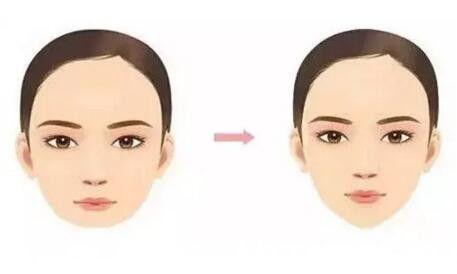 玻尿酸隆下巴前后效果对比