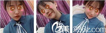 觉得自体脂肪面部填充太麻烦,我在上海美联臣找陈红梅做了玻尿酸面部填充拯救我凹陷的脸