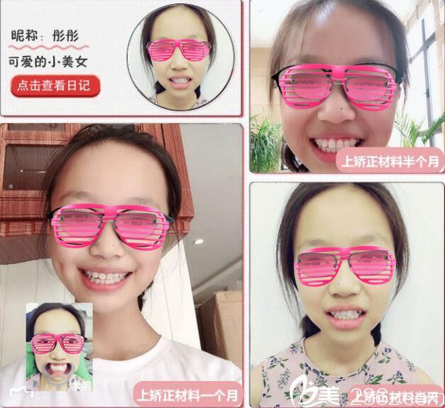 武汉美都半隐形矫正牙齿案例恢复对比