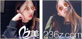 上海美联臣吸脂贵不贵?大脸的我找刘先超做了面部吸脂价格公道效果还好