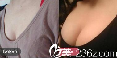 天津联合丽格脂肪丰胸案例