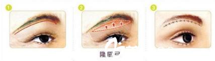 填充眉弓手术示意图