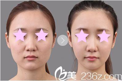 桂林华美整形线雕V脸提升前后对比图