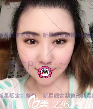 我在北京奥斯卡做双眼皮宽窄不一修复是因刘风卓双眼皮修复技术不错