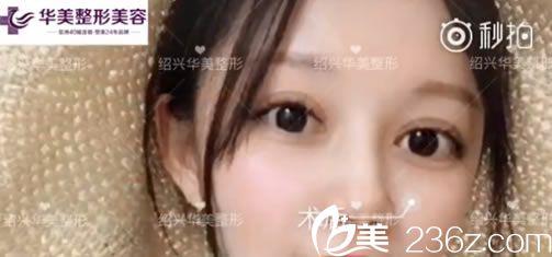 国庆节期间在绍兴华美杨国化这做的双眼皮和开眼角手术,现在效果自然无肉条感