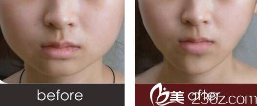 注射瘦脸针真人前后对比效果