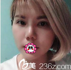 了解了北京雅靓双眼皮技术和价格后我找陈林叶做了眼综合