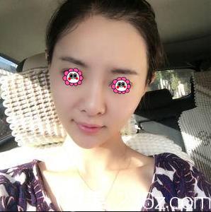 我在北京延世找金惠燕注射瘦脸除皱经历告诉你注射瘦脸除皱多久见效