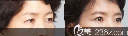 长春祛眼袋哪家好?正韩整形的内切祛眼袋和激光吸脂祛眼袋方法及案例效果展示