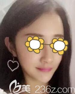 锦州做鼻整形哪家医院好?分享我在锦州博美雅整形做韩式生科假体隆鼻术后一个月效果!