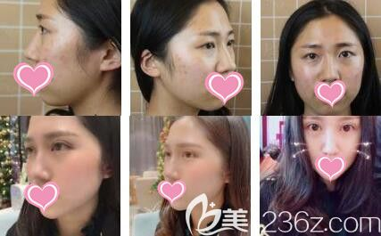 上海艺星医疗美容医院傅金萍双眼皮真人案例