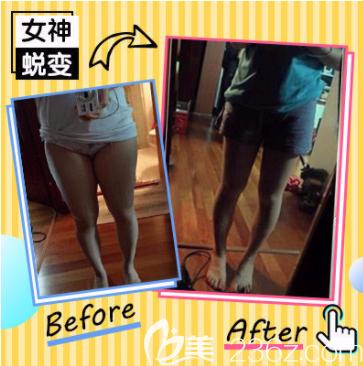 北京世熙腿部吸脂案例